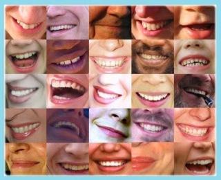 tipos de sonrisa