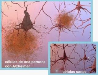 neuronas alzheimer