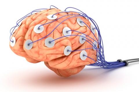 cerebro electrodos